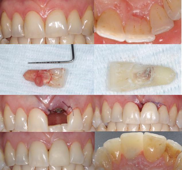 Estrazione dei denti permanenti torino.jpg