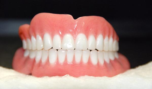 riparazione dentiera torino