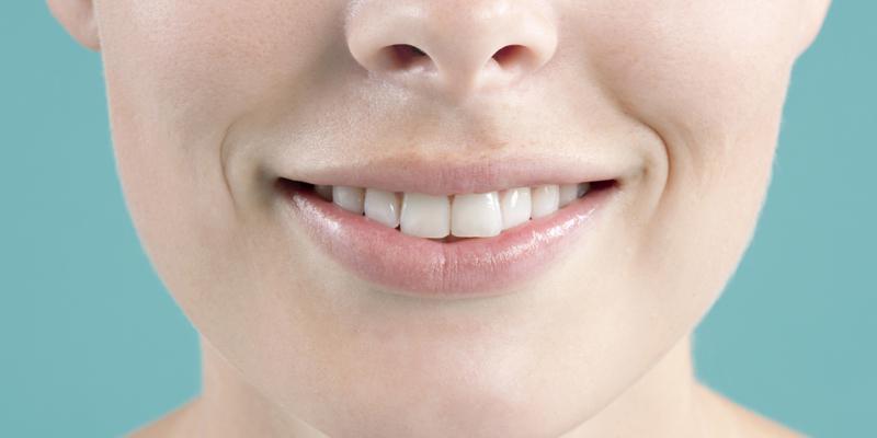 sbiancare i denti torino