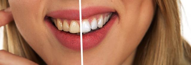 sbiancamento dentale fai da te