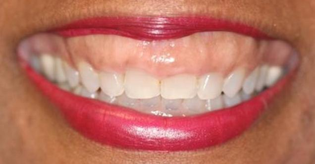 parodontite e diabete