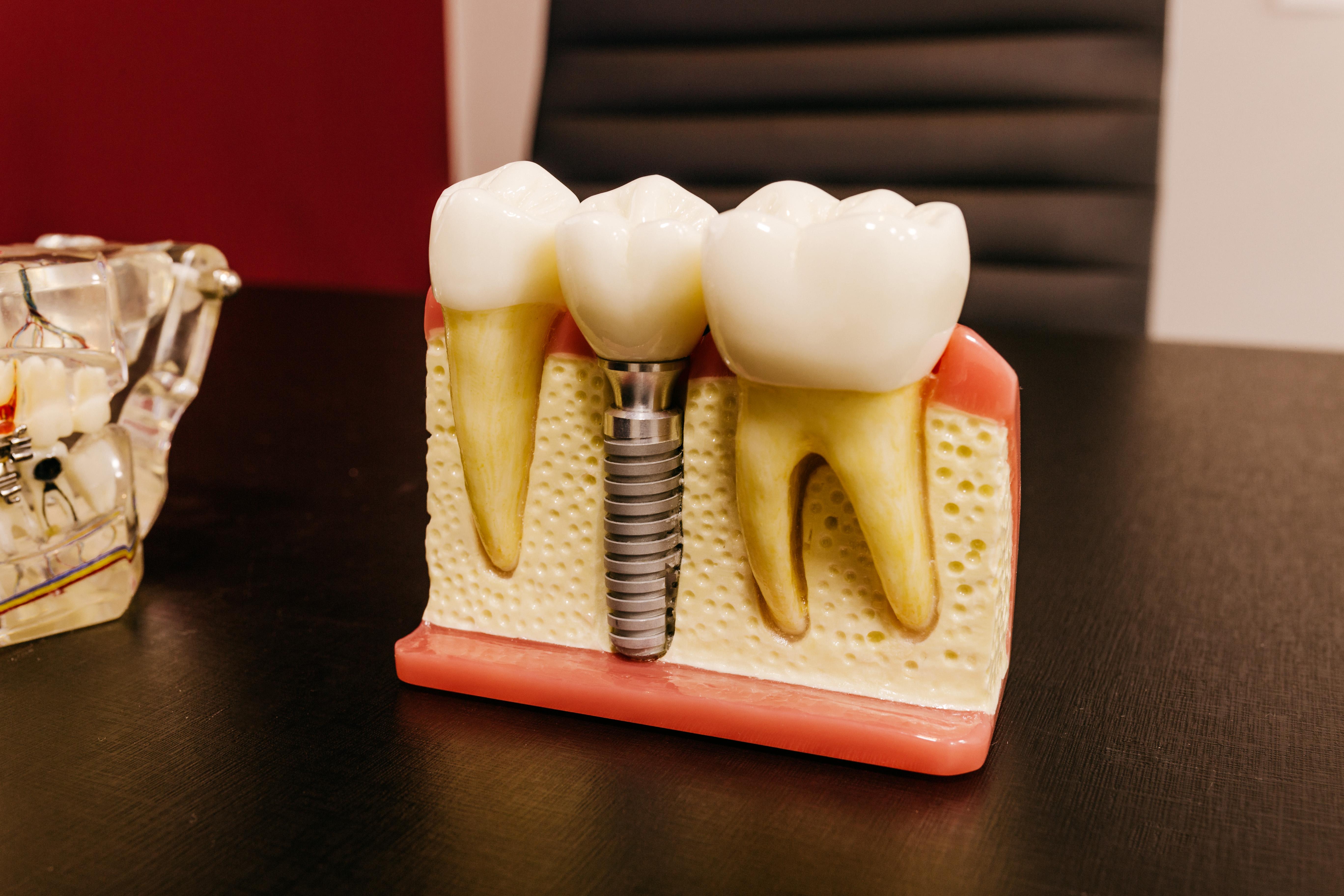 quanto dura un impianto dentale
