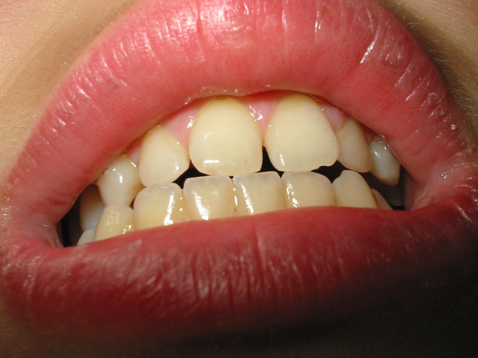 denti larghi
