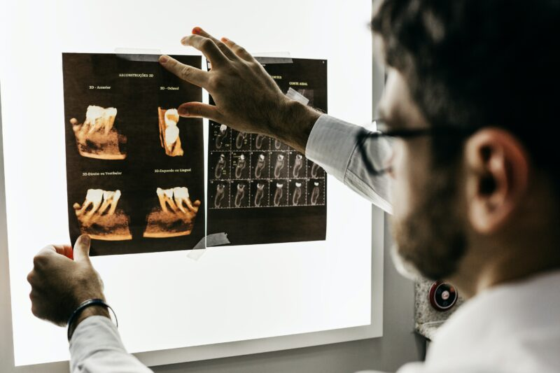 Impronta ottica dentale